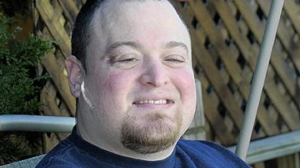 Jeremy Feldbusch lost his sight after a piece of artillery shrapnel tore through his skull in Iraq in 2003. He underwent a new procedure that transferred fat from other parts of his body to fill in the side temple area of his head.